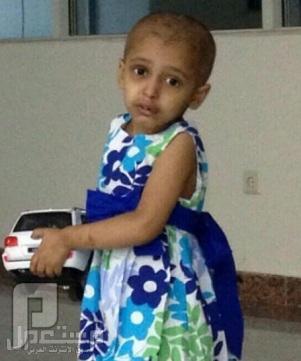 شاهد بالصور حقن طفلة علاج كيماوي بالخطأ في القصيم !