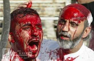 اصابة مواطنين اثنين بطلقات ناريه بالقطيف صباح يوم الجمعة عزكم الله واكرمكم عن المنظر والاشخاص الي فيه