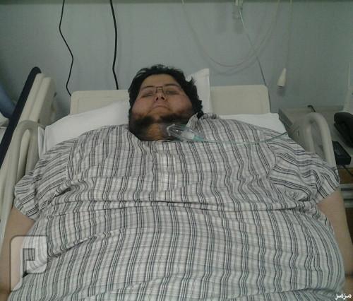 وفاة مريض السمنة الدوسري في مستشفى البرج الطبي بالدمام صباح اليوم