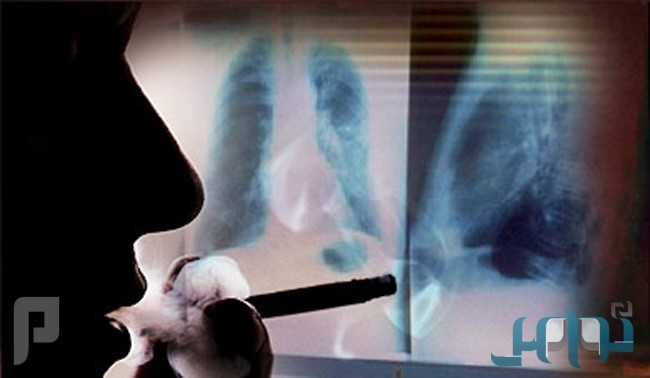 دراسة: طفرة جينية تضاعف خطر الإصابة بسرطان الرئة لدى المدخنين