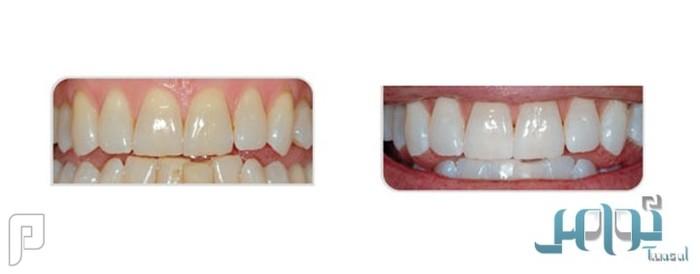 5 أخطاء شائعة حول تبييض الأسنان
