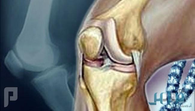 """إرشادات مهمة للحفاظ على """"ركبة صحية"""