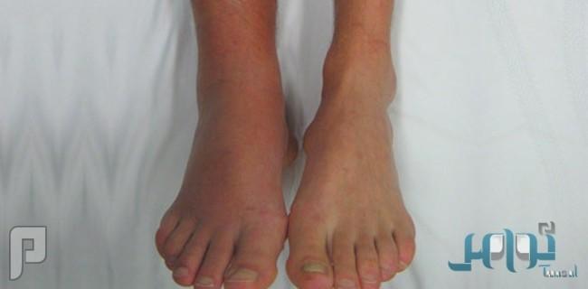 العلامات والأعراض الدالّة على جلطة الساق
