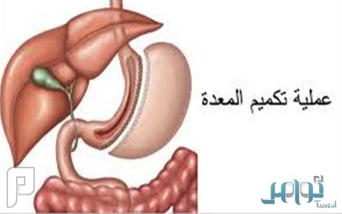 دراسة: جراحات إنقاص الوزن تقي من السكري بنسبة 80%