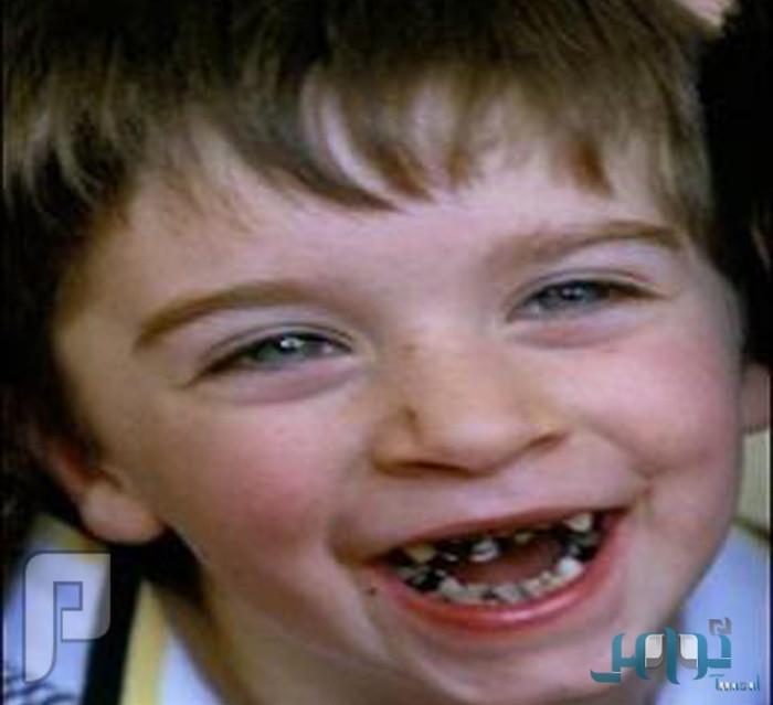 6 نصائح مهمة لحماية طفلك من تسوس الأسنان