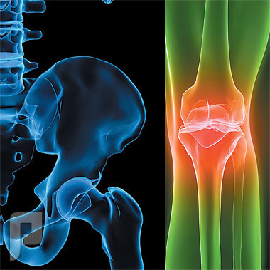 هشاشة العظام (Osteoporosis) أسبابه وأعراضه وعلاجه