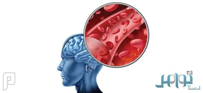 دراسة: الوظائف المرهقة تُسبب السكتة الدماغية