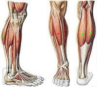 الشد العضلى وكيفية علاجه