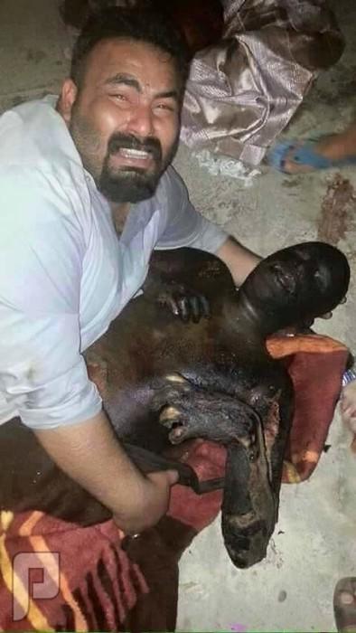 أهل  السنة  والجماعة  في  العراق  يحرقون  ويعتقلون يستقبل  أخاه  محروقا  في  ديالى