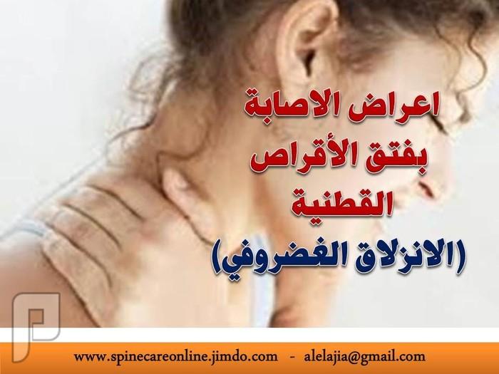 اعراض الاصابة بفتق الأقراص القطنية (الانزلاق الغضروفي)