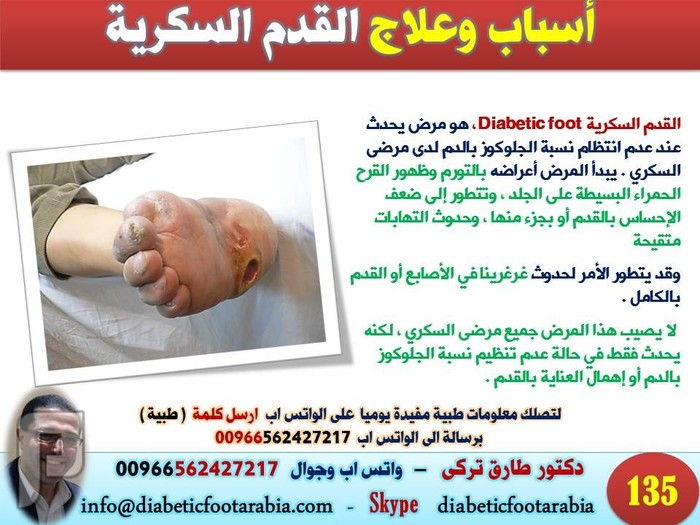 تعرف على أسباب وعلاج القدم السكرية | دكتور طارق تركى
