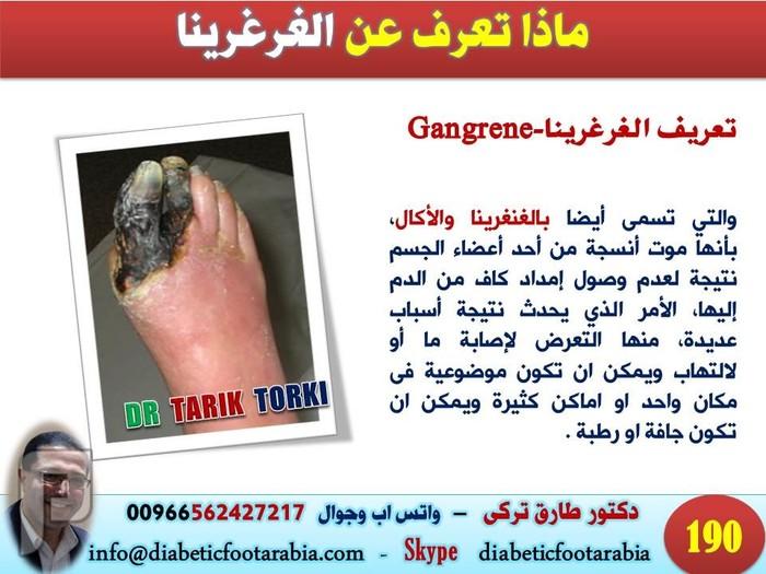 ماذا تعرف عن الغرغرينا ( موت انسجة احد اجزاء الجسم ) | دكتور طارق تركى ماذا تعرف عن غرغرينا القدم السكرى | دكتور طارق تركى