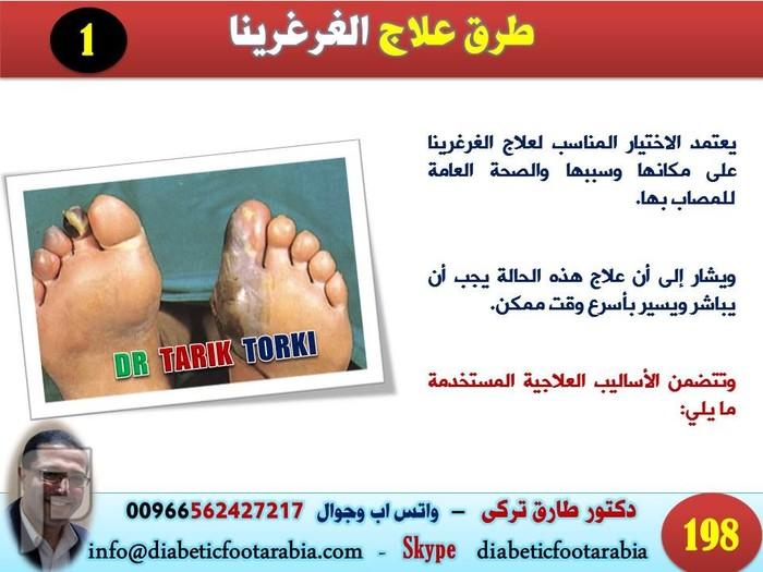 ماذا تعرف عن الغرغرينا ( موت انسجة احد اجزاء الجسم ) | دكتور طارق تركى كيفيةعلاج غرغرينا القدم السكرى | دكتور طارق تركى