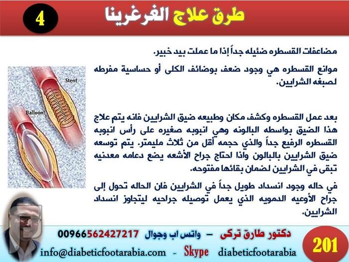 ماذا تعرف عن الغرغرينا ( موت انسجة احد اجزاء الجسم ) | دكتور طارق تركى طرق علاج غرغرينا القدم | دكتور طارق تركى