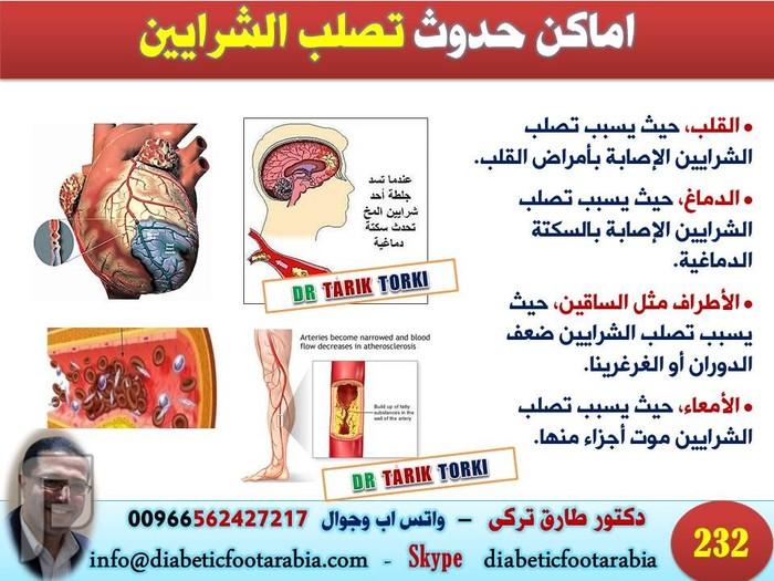 تعرف على تصلب الشرايين الاسباب و الاعراض و العلاج | دكتور طارق تركى