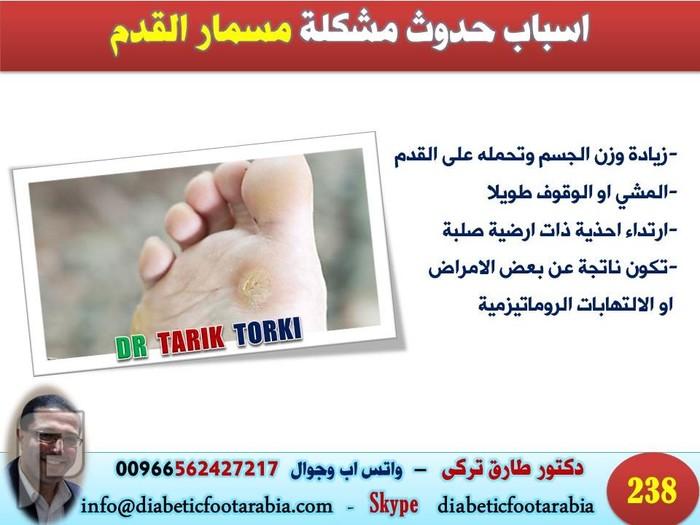 مسمار القدم | مسامير القدم | الاسباب و العلاج | دكتور طارق تركى