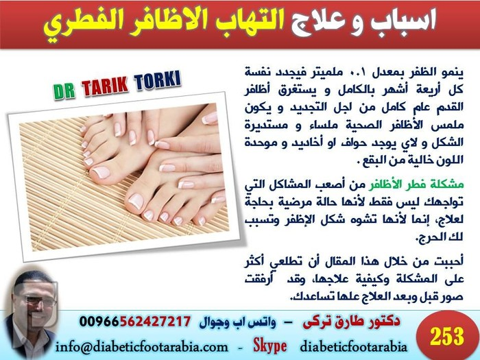 اسباب و علاج التهاب الاظافر الفطري | فطريات الاظافر | دكتور طارق تركى