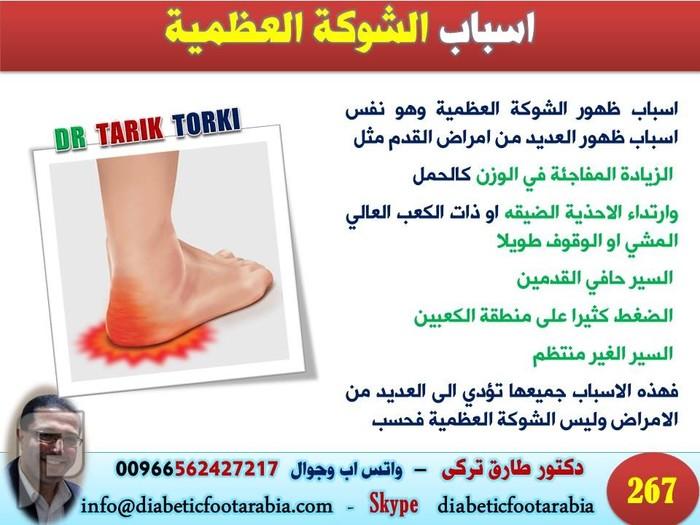 اسباب وعلاج الشوكة العظمية | دكتور طارق تركى