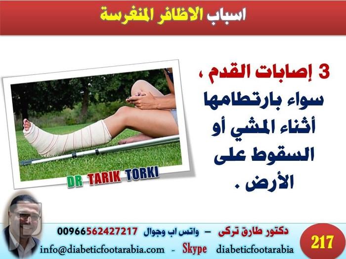 الاظافر المنغرسة الاسباب و الاعراض و الوقاية والعلاج | دكتور طارق تركى