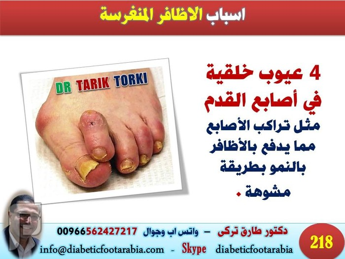 الاظافر المنغرسة الاسباب و الاعراض و الوقاية والعلاج   دكتور طارق تركى
