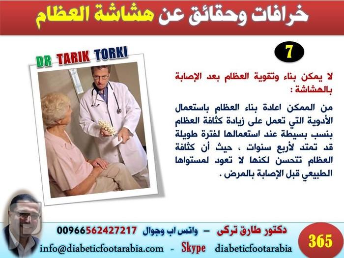 خرافات وحقائق عن هشاشة العظام لم تعرفها من قبل | دكتور طارق تركى