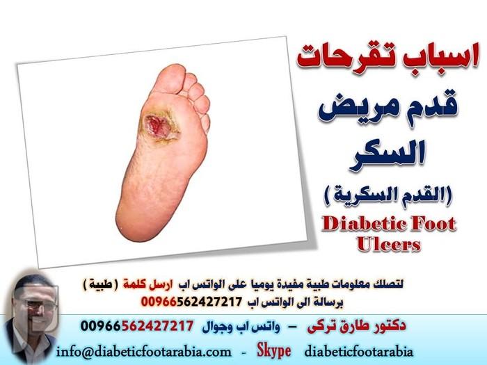 اسباب تقرحات قدم مريض السكر (القدم السكرية ) | دكتور طارق تركى اسباب تقرحات قدم مريض السكر (القدم السكرية ) | دكتور طارق تركى
