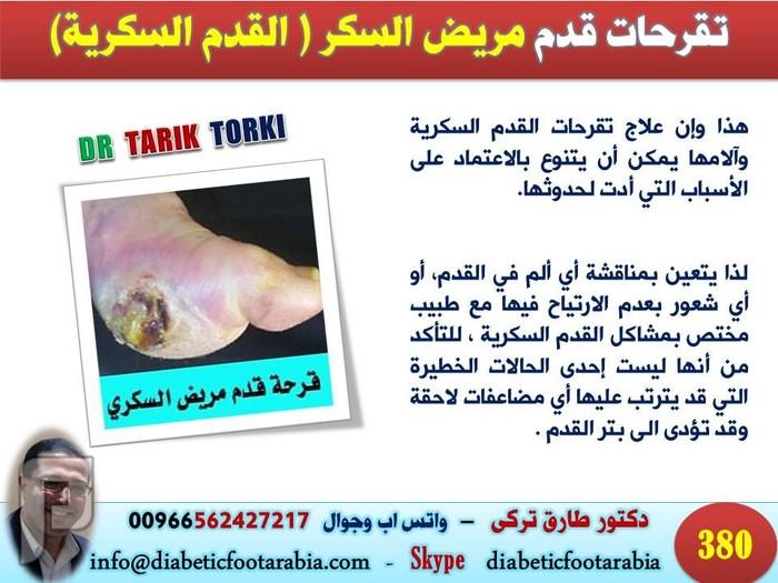 اسباب تقرحات قدم مريض السكر (القدم السكرية ) | دكتور طارق تركى