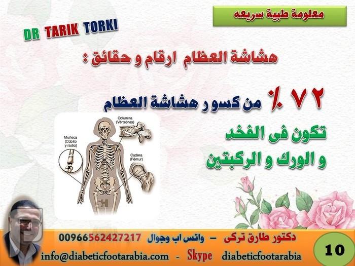 حقائق وارقام عن هشاشة العظام لم تعرفها من قبل | دكتور طارق تركى