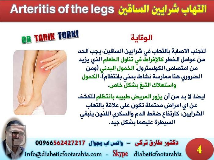 التهاب شرايين الساقين Arteritis of the legs | دكتور طارق تركى