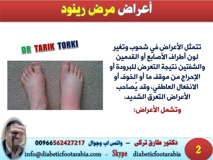 زرقة الأطراف وآلامها.. الأسباب والعلاج - مرض رينود | دكتور طارق تركى
