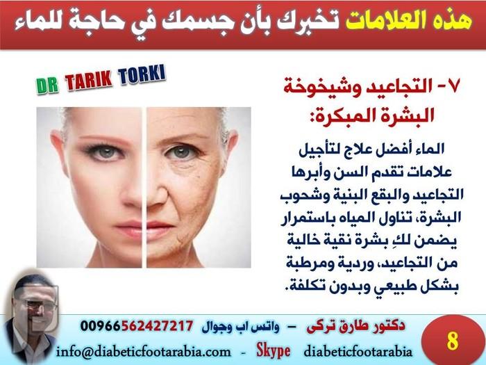 9 علامات تخبرك بأن جسمك يفتقد الماء | دكتور طارق تركى