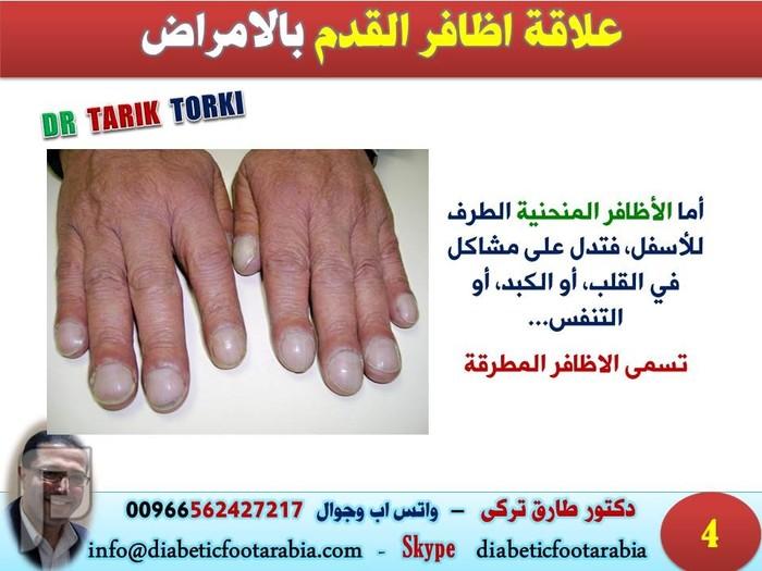 اظافر القدم تكشف عن أمراض القلب | دكتور طارق تركى