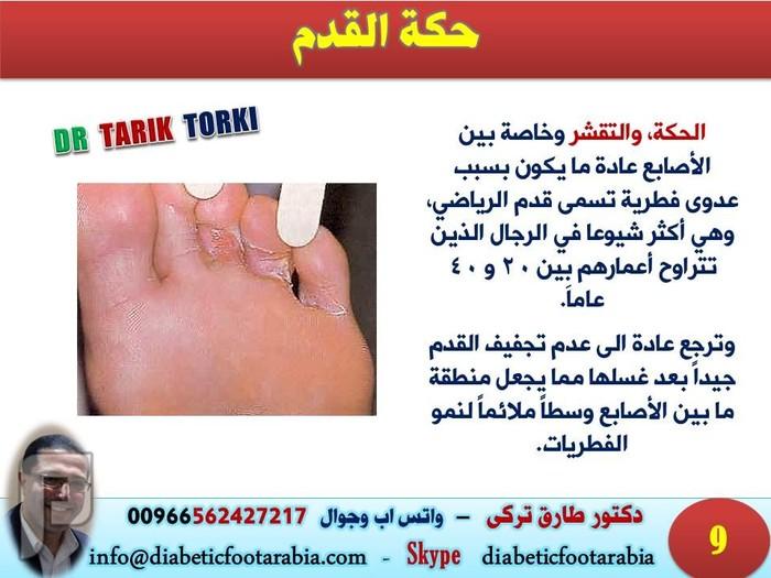 المشاكل الصحية التي تخبرك بها قدميك!! | دكتور طارق تركى