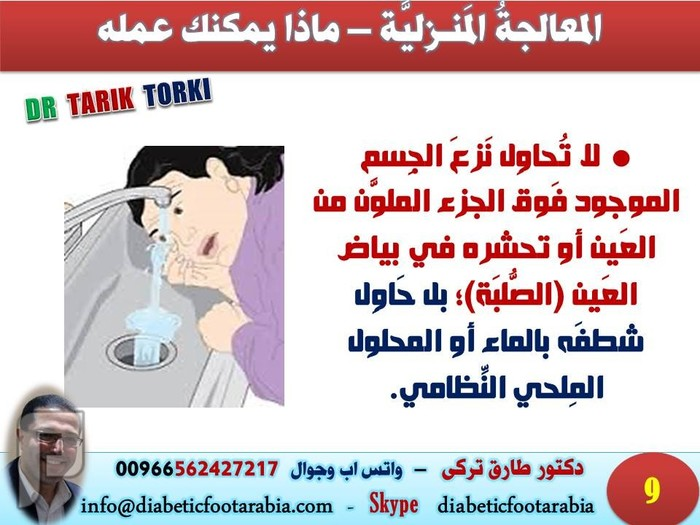الإسعافات الأولية - دخول جسم في العين | دكتور طارق تركى