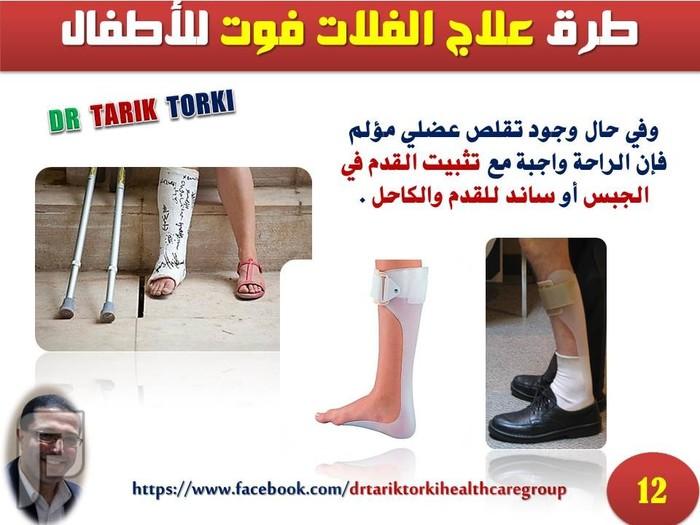 طرق علاج الفلات فوت للأطفال | دكتور طارق تركى