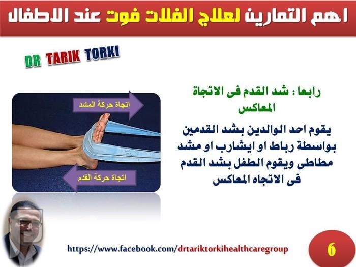 اهم التمارين لعلاج الفلات فوت عند الاطفال | دكتور طارق تركى