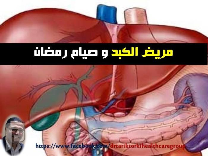 مريض الكبد و صيام رمضان | دكتور طارق تركى مريض الكبد و صيام رمضان | دكتور طارق تركى