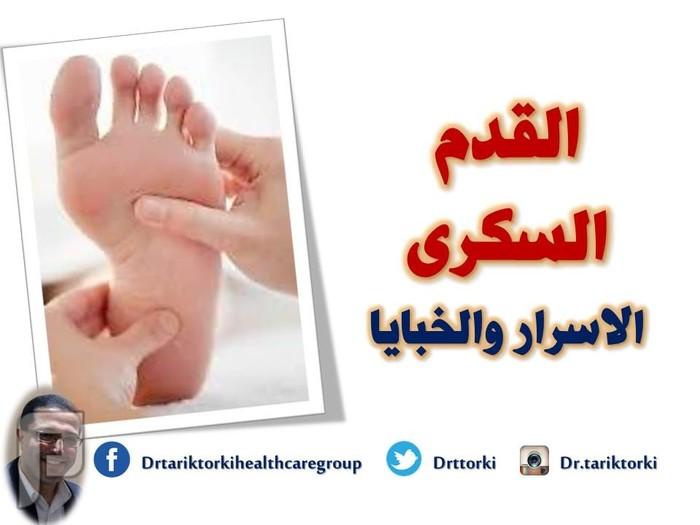 القدم السكرى اسرار وخبايا   تعريف القدم السكرى   دكتور طارق تركى القدم السكرى اسرار وخبايا   تعريف القدم السكرى   دكتور طارق تركى