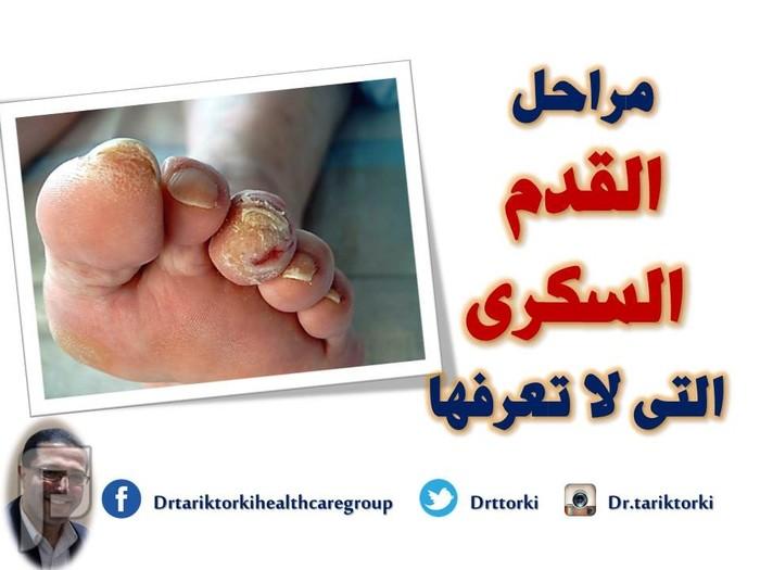 مراحل القدم السكرى التى لا تعرفها | دكتور طارق تركى مراحل القدم السكرى التى لا تعرفها