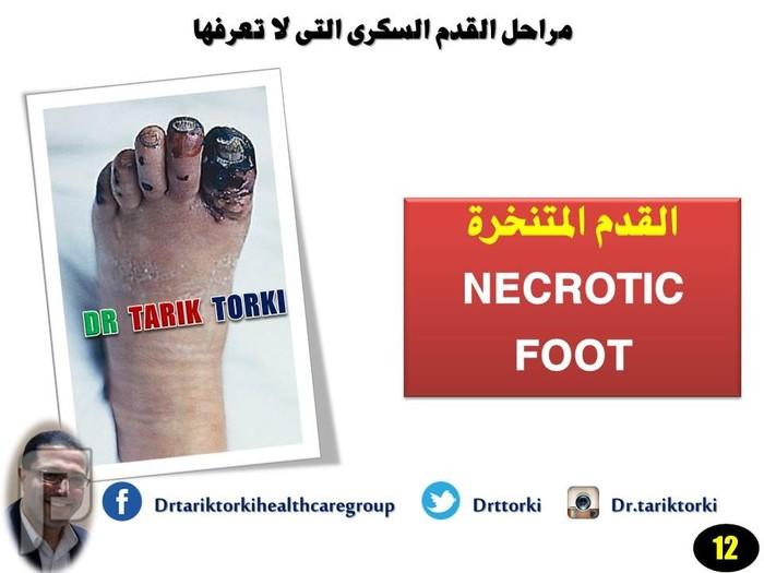 مراحل القدم السكرى التى لا تعرفها | دكتور طارق تركى