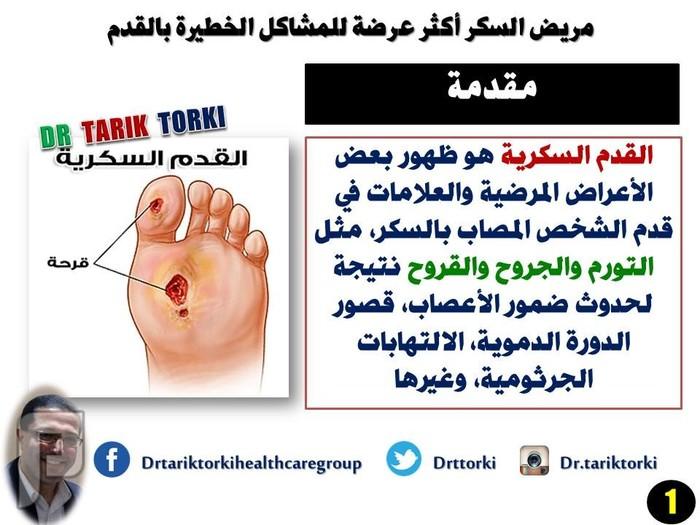 مريض السكر أكثر عرضة للمشاكل الخطيرة بالقدم   دكتور طارق تركى