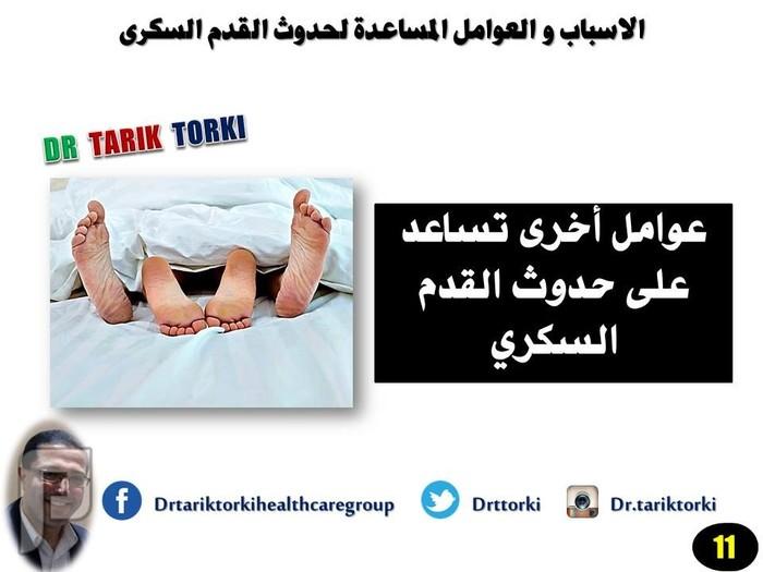 الاسباب و العوامل المساعدة لحدوث القدم السكرى   دكتور طارق تركى