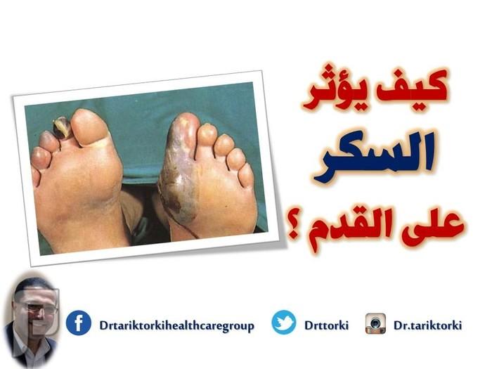 كيف يؤثر السكر على القدم ؟ | دكتور طارق تركى كيف يؤثر السكر على القدم ؟