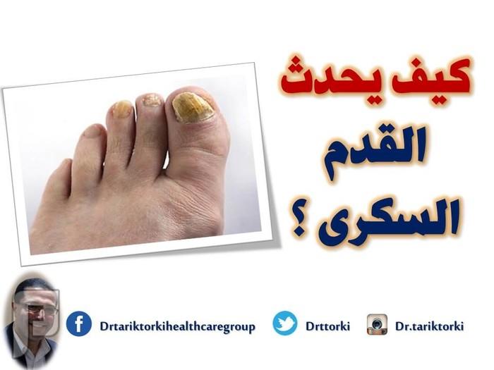 كيف يحدث القدم السكرى ؟ | دكتور طارق تركى كيف يحدث القدم السكرى ؟ | دكتور طارق تركى