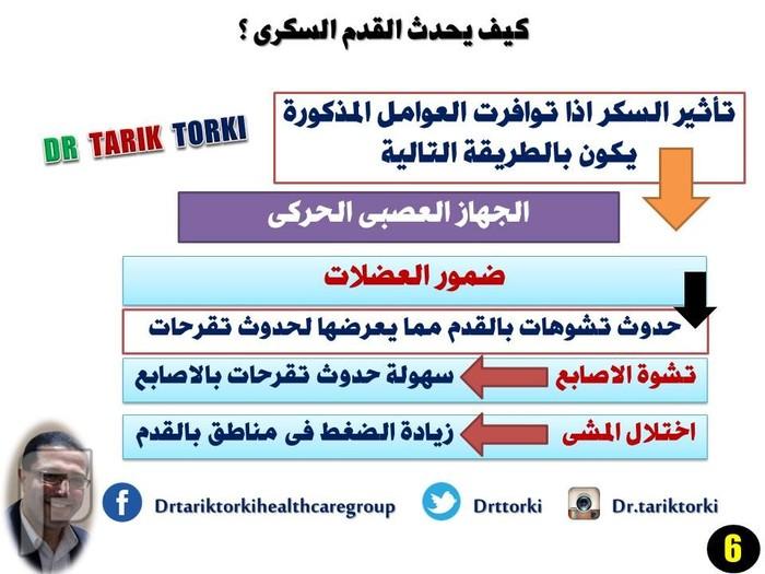 كيف يحدث القدم السكرى ؟ | دكتور طارق تركى