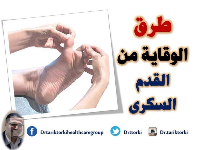 طرق الوقاية من القدم السكرى | دكتور طارق تركى طرق الوقاية من القدم السكرى | دكتور طارق تركى
