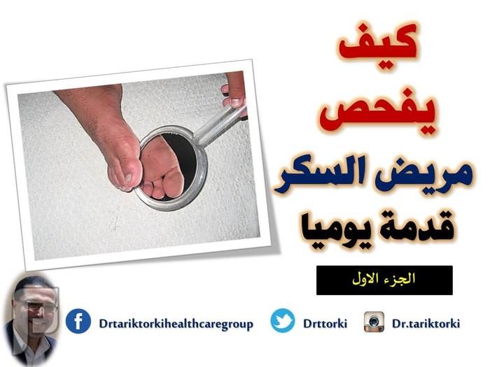 كيف يفحص مريض السكر قدمة يوميا ؟ - الجزء الاول | دكتور طارق تركى كيف يفحص مريض السكر قدمة يوميا
