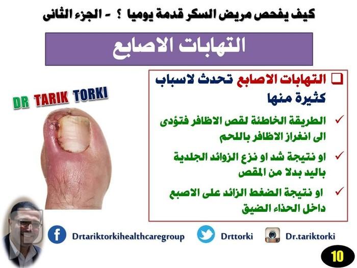 كيف يفحص مريض السكر قدمة يوميا ؟ - الجزء الثانى    دكتور طارق تركى