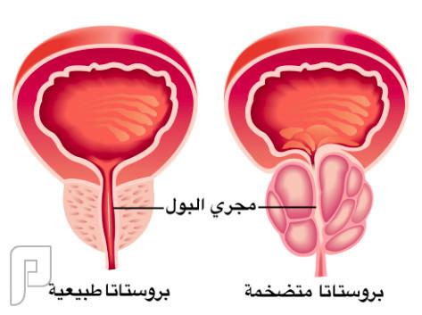 لتطهير الجسم من السموم وعلاج تضخم البروستات