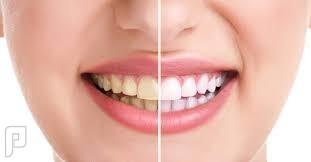 اسنان برخص التراب